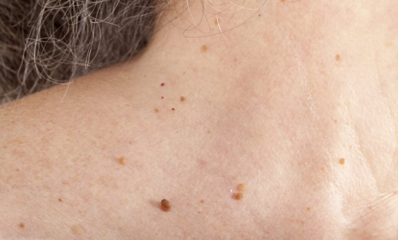 Photo of How To Get Rid Of Skin Tags: 8 Most Effective Home Remedies